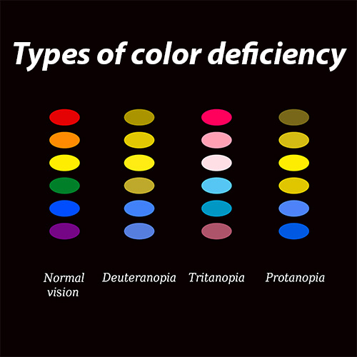 Types_of_color_deficiency .jpg